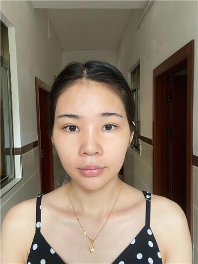 重庆吸脂瘦脸术后恢复情况对比