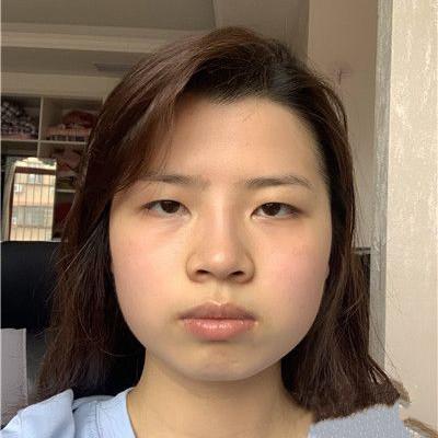 广州眼综合手术术后效果分享