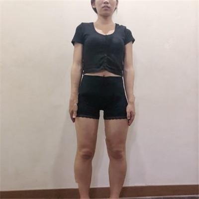 重庆水动力吸脂瘦大腿恢复情况分享
