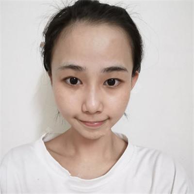 武汉小仙女眼部综合术后恢复情况分享