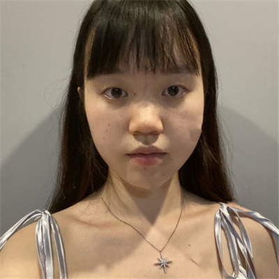 北京眼部综合手术术后恢复效果对比