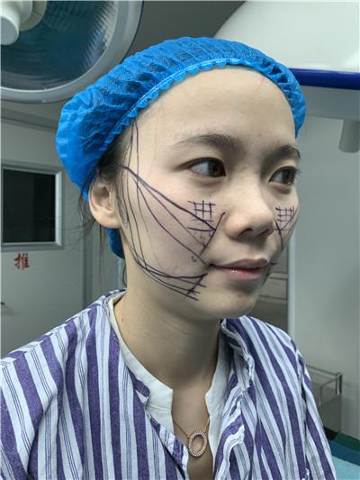广州小姐姐面部线雕提升术后效果对比