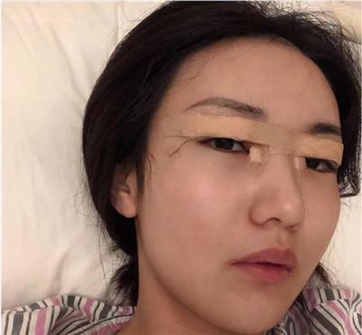 东莞切开双眼皮术后恢复效果反馈