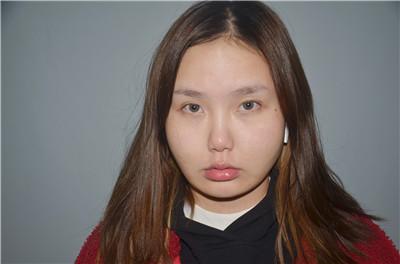 长沙吸脂瘦脸术后恢复效果展示