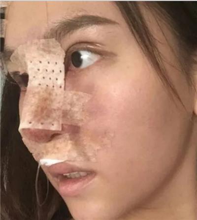 成都鼻综合手术术后恢复效果对比