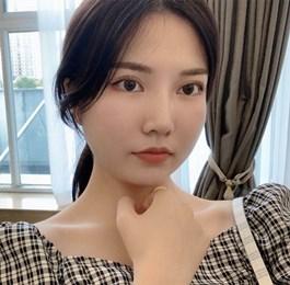 广州颧骨整形手术效果分享