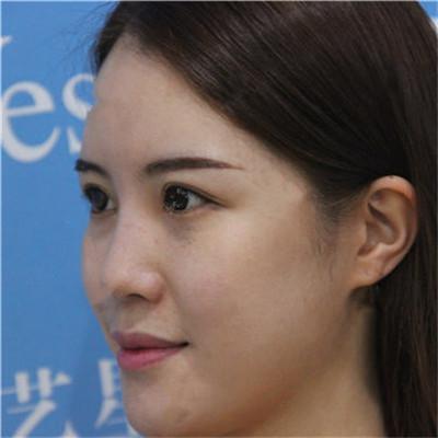 济南鼻综合手术术后恢复情况对比