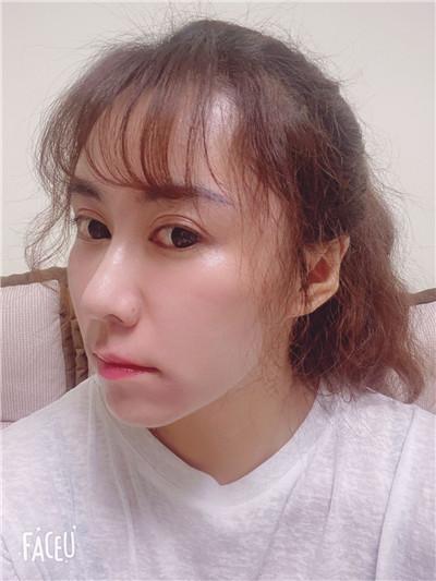 青岛祛眼袋术后恢复效果反馈