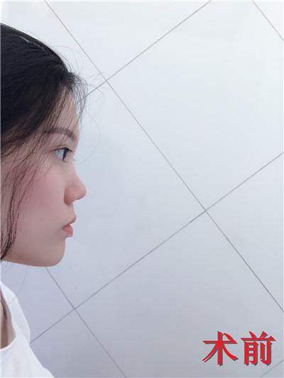 广州鼻部综合手术术后案例分享