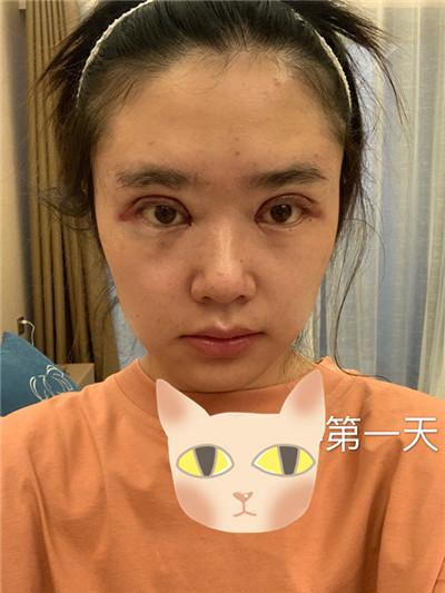 南宁全切双眼皮术后恢复情况对比图分享