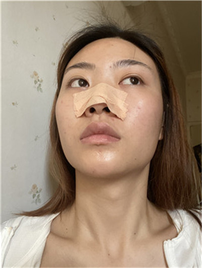 武汉硅胶假体隆鼻术后恢复情况分享