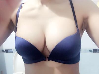 北京假体隆胸术后恢复案例对比