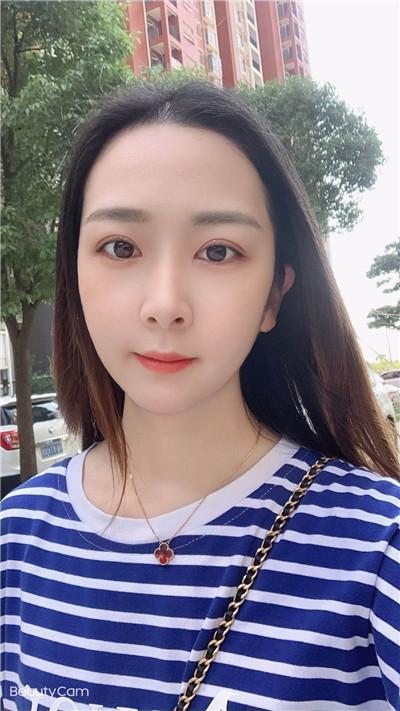 上海眼综合术后恢复情况反馈