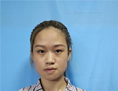 湖南小姐姐吸脂瘦脸术后效果反馈