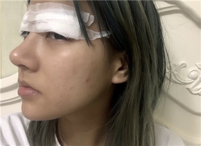 重庆全切双眼皮术后恢复情况对比