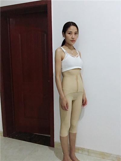 北京全身吸脂手术术后恢复情况分享