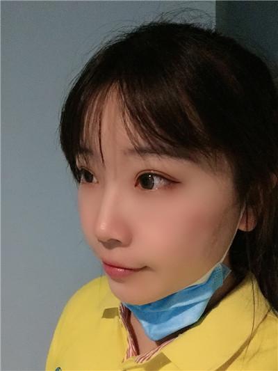 青岛全切双眼皮术后恢复情况反馈
