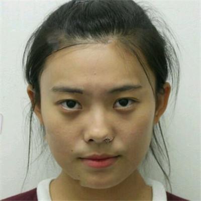 杭州全切双眼皮术后恢复效果反馈