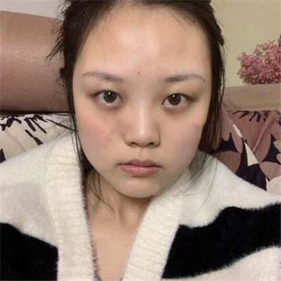 昆明眼部综合术后恢复效果反馈