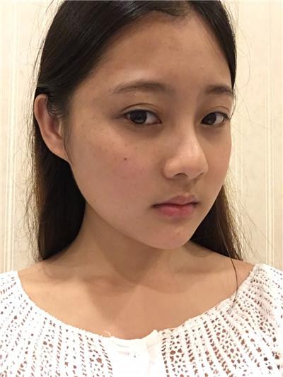 郑州吸脂瘦脸手术术后效果对比