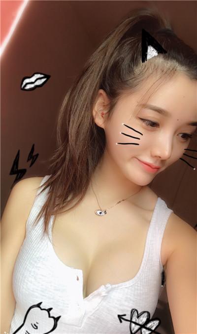 南昌小姐姐假体隆胸手术效果图分享