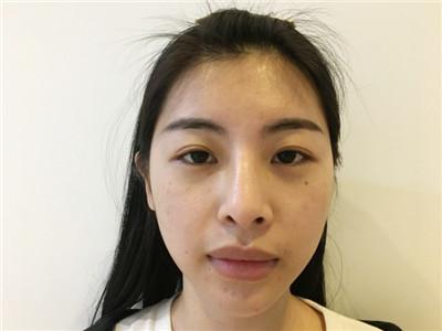 广州M唇术后恢复情况分享