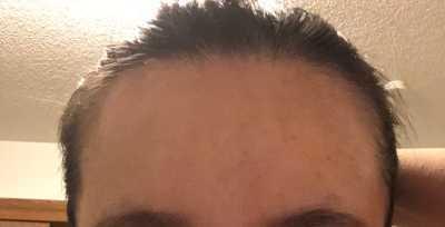 大脑门的女生只能植发吗?没其他方法吗