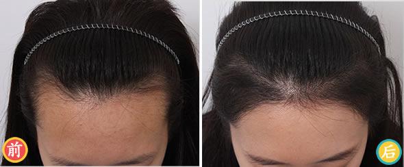 长沙美莱种植发际线怎么样?