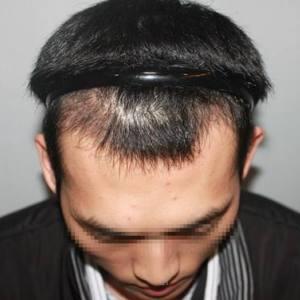 廊坊这边有好的植发医院吗?还是说到北京做植发比较好?