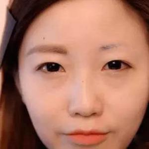 种植眉毛的效果自然吗?