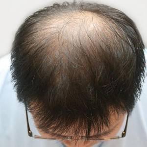 重庆时光做植发怎么样?