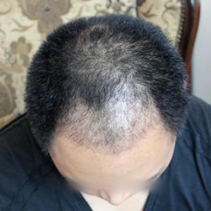 植发的成功率高吗?怎么确定植发失败了?