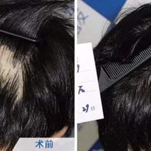 做疤痕植发效果怎么样?价格贵不贵?