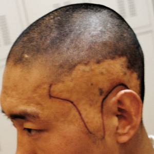 疤痕植发安全吗?靠谱吗?