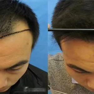 看到植发医院医生都很年轻,这些植发医生植发靠谱吗?