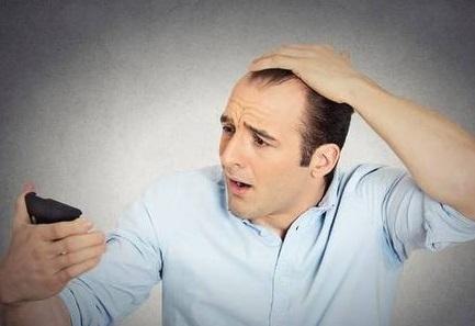 种植头发会失败吗?轻微头发一定要植发吗?