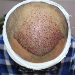 植发手术术后一周需要特别注意什么吗?