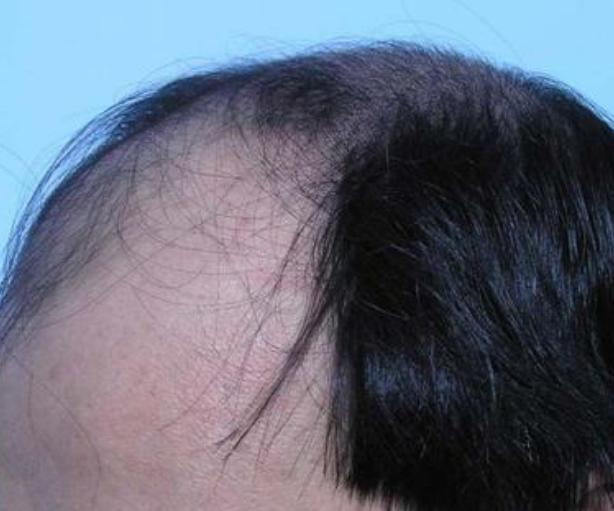 """""""M""""型发际线最终一定会脱发甚至秃顶吗"""