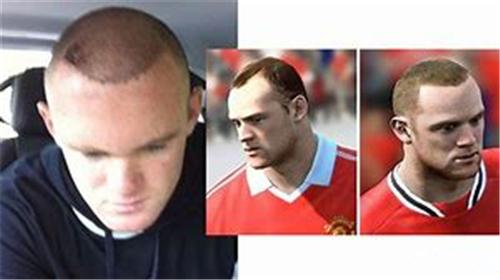 一个人可以做多少次毛发移植呢