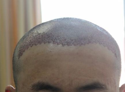 植发手术后的血痂怎么处理呢