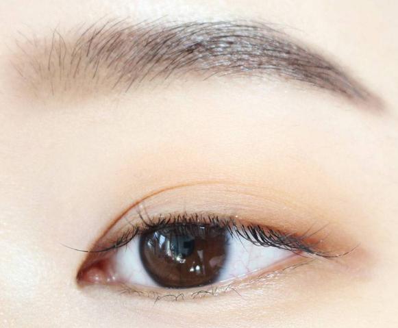 每个人都适合做眉毛种植手术吗