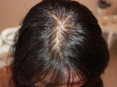 头发稀疏很少能做加密手术吗?