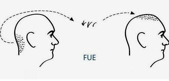 FUE植发的效果怎么样呢