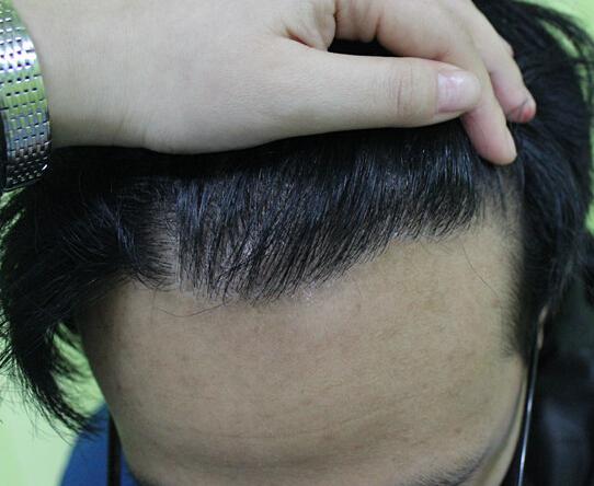 植发的效果好不好,看这几个方面就知道