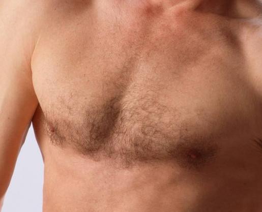 胸毛种植需要多少钱