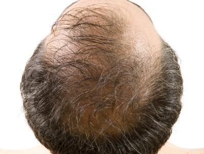 植发对身体有没有伤害