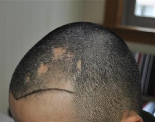疤痕毛发移植后疤痕还在吗