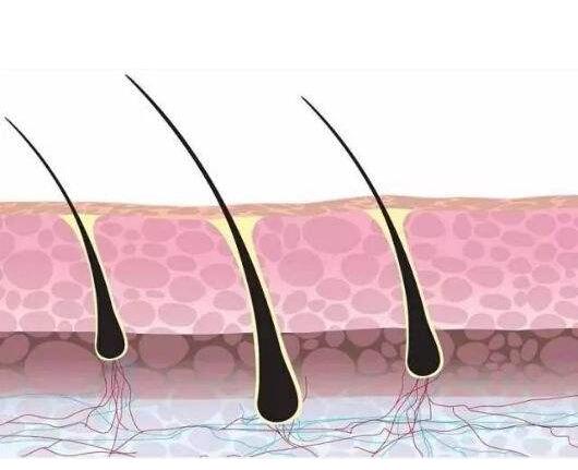 毛囊坏死了,做植发有用吗