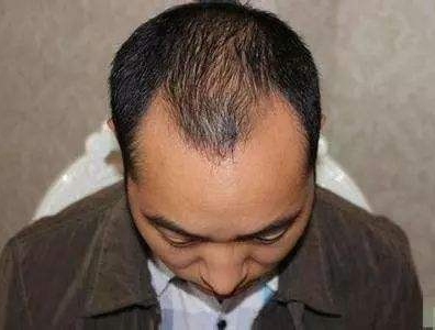 发际线植发一年都不能喝酒么