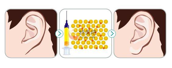 玻尿酸丰耳垂